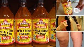 getlinkyoutube.com-7 Surprising Beauty Benefits of Apple Cider Vinegar
