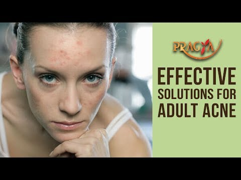 Effective Solutions For Adult Acne- Dr. Shehla Aggarwal (Dermatologist)