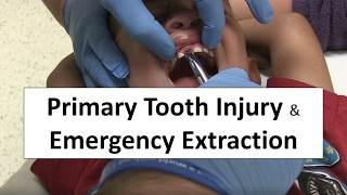 getlinkyoutube.com-Primary Tooth Injury and Emergency Extraction