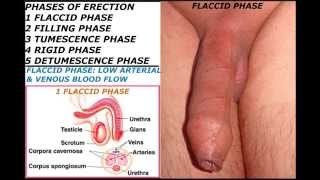 getlinkyoutube.com-Human penis part 10 : Phases of erection and Erectile dysfunction .18+ Educational purposes only