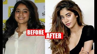 Sridevi Daughter Jhanvi Kapoor Plastic Surgery Before And After
