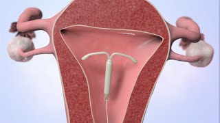 getlinkyoutube.com-Patient Education Video: Intrauterine Device (IUD)