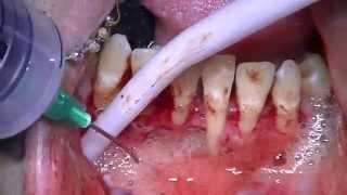 getlinkyoutube.com-Cyst removal