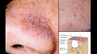 getlinkyoutube.com-HOW BLACKHEADS & ACNE FORM AND HOW TO GET RID OF THEM: DRAW MY LIFE STYLE