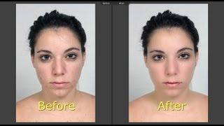 getlinkyoutube.com-Learn Lightroom 5 - Part 14: Portrait Retouch Redux (Training Tutorial)