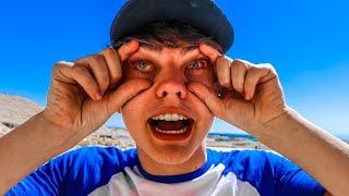 HE WENT BLIND!
