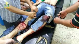 إصابة أحد عناصر الجيش الحر أثناء الاشتباكات م على أطراف حي الكازية  قبل قليل 04/08/2014