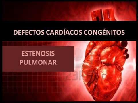 Defectos cardíacos congénitos - Estenosis pulmonar