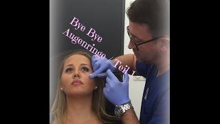 getlinkyoutube.com-Mein Gang zum Beauty Doc / Augenringe entfernen mit Hyaluron