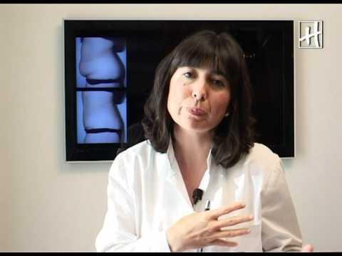 Dra. Encarna Carreño - Abdominoplastia