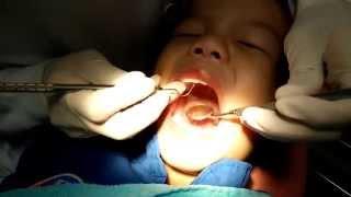 getlinkyoutube.com-เด็กเล็ก (ดาวิน 3 ขวบ) ไปหาหมอฟันเด็ก เพจฟันน้ำนม