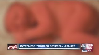 getlinkyoutube.com-Citrus County toddler severely abused and neglected, mother arrested
