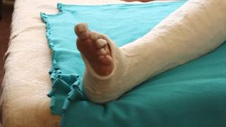 long leg cast girl at home