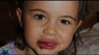 getlinkyoutube.com-my toddler fell down, chipped her tooth & has 2 fat lips!