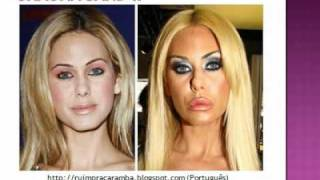 getlinkyoutube.com-27- Plastic Surgery Fail (before after) 27 - Cirurgia Plastica - Antes Despues  - youtube