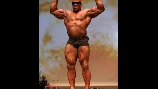 getlinkyoutube.com-Does Ronnie Coleman Have Palumboism ? Who Else ???
