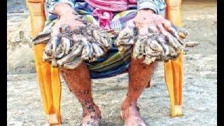 getlinkyoutube.com-খুলনার পাইকগাছার প্রত্যন্ত অঞ্চলে বিরল রোগে আক্রান্ত রোগীর চিকিৎসা শুরু