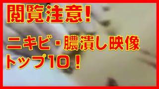 getlinkyoutube.com-閲覧注意!ニキビ・膿・嚢腫のブシューッにゅるにゅるッと噴射・潰すグロい映像TOP10!外人はホントにアテロームが好きだね。CYST PIMPLE POPPING TOP 10