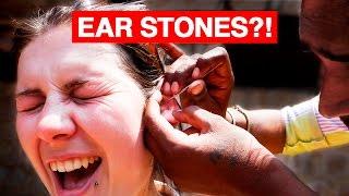 getlinkyoutube.com-Indian Ear Cleaning   STONES?!