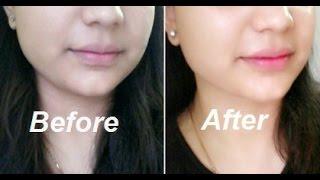 getlinkyoutube.com-How to Lighten Skin Naturally in 20 Minutes