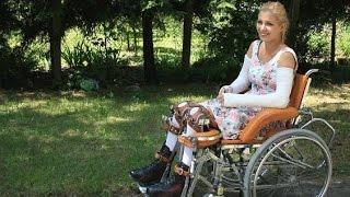 getlinkyoutube.com-Amy with 2 long arm casts and leg braces