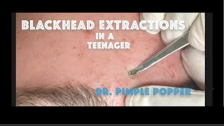 getlinkyoutube.com-Comedone extractions for teenage acne. For medical education- NSFE