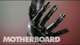 getlinkyoutube.com-This Mind-Controlled Bionic Arm Can Touch and Feel