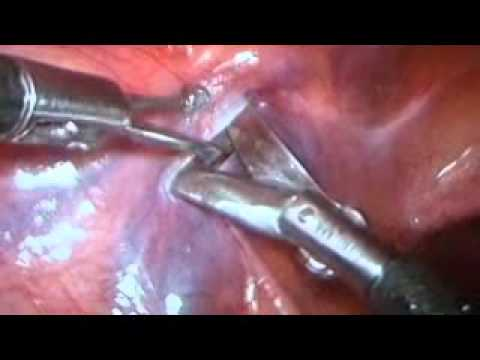 Tht tnh mch thng tinh ni soi Laparoscopic varicocelectomy, L nh Khnh