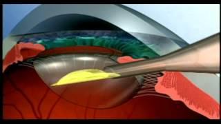 getlinkyoutube.com-IQ ReSTOR® Intraocular Lenses (IOL)