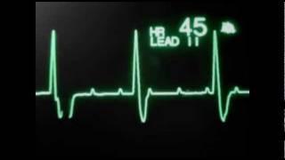 getlinkyoutube.com-Нарушения сердечного ритма и проводимости на мониторе