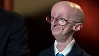 getlinkyoutube.com-Remembering Sam Berns