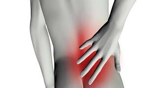 getlinkyoutube.com-Sciatica - معلومات صحية عن عرق النسا - فيديو توضيحي من موقع دكتوري