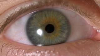 getlinkyoutube.com-My Iris Wobbles! - Eye In Slow Motion
