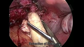 Ureterolithotomy for 5cm Left Lower Ureteric Stone by Dr Anshuman Agarwal