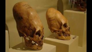 getlinkyoutube.com-LA Marzulli   Watchers 10 and Nephilim Hybrids