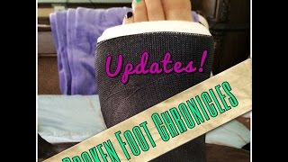 Broken Foot Chronicles & Updates! | Tia Kirby