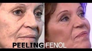getlinkyoutube.com-PEELING FENOL : Fórmula Juventude, Peeling Fenol RJ