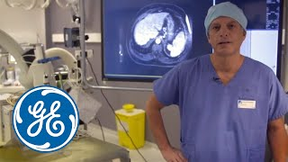 getlinkyoutube.com-Complex radiofrequency ablation with GE's Innova IGS 540 and LOGIQ E9 XDclear 2.0