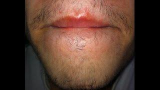 getlinkyoutube.com-Minoxidil para la barba - Primer mes | Juan Daniel Osorio.