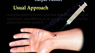 getlinkyoutube.com-Carpal Tunnel Injection - Everything You Need To Know - Dr. Nabil Ebraheim