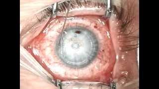 Meine Augenlaser OP - Lasik 19.02.2013