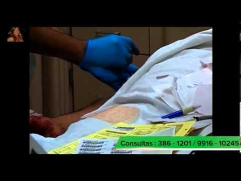 gastritis cronica helicobacter pylori cura total remedio casero natural uriel tapia 134