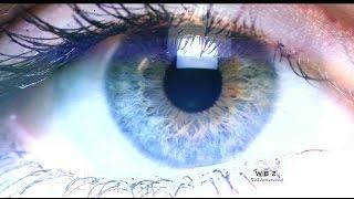getlinkyoutube.com-New Procedure Changes Brown Eyes To Blue