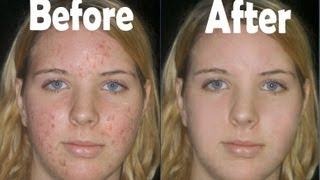 getlinkyoutube.com-Remove Acne and Make Face Soft in Adobe Photoshop 7