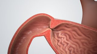 Pyloric Stenosis (Blocked Stomach)