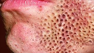 getlinkyoutube.com-Trypophobia, Popping Pimples & Cysts or Warts!