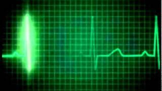 getlinkyoutube.com-Heart Rate Monitor.mov