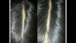 How to tweeze your lace closure | Natural LOOKING
