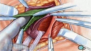 getlinkyoutube.com-Hernia Repair Inguinal (Open) Surgery Patient Education