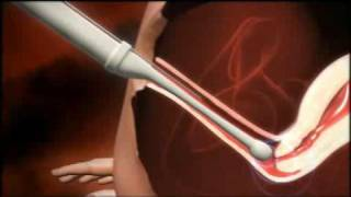 3D animation of how IVF works